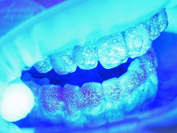 repost zęby